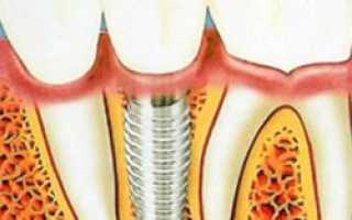 Имплантация зубов приходит на место зубного протезирования