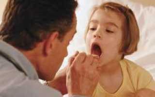 Причина эпидемии кори — отказ от прививки