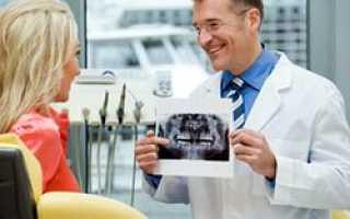 Возможна ли имплантация зубов при остеопорозе
