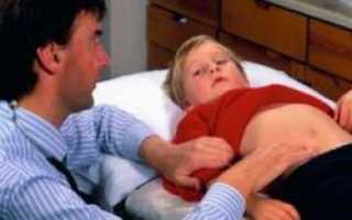 Американские врачи научились лечить аппендицит без операции